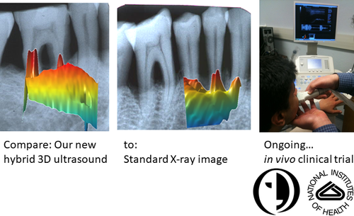 3D ultrasound for periodontitis diagnostic