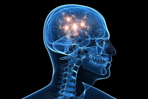 Graphic of brain activity using bursts of lights in a skull