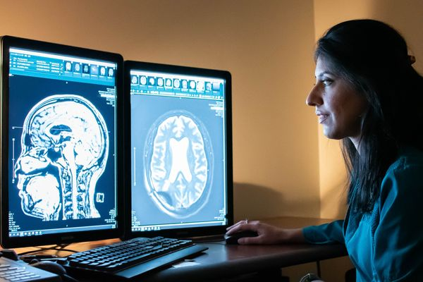 woman looks at computer screens with showing images of a human brain