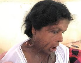 Rashimi, a domestic abuse victim, has face and neck scars from a domestic abuse incident.