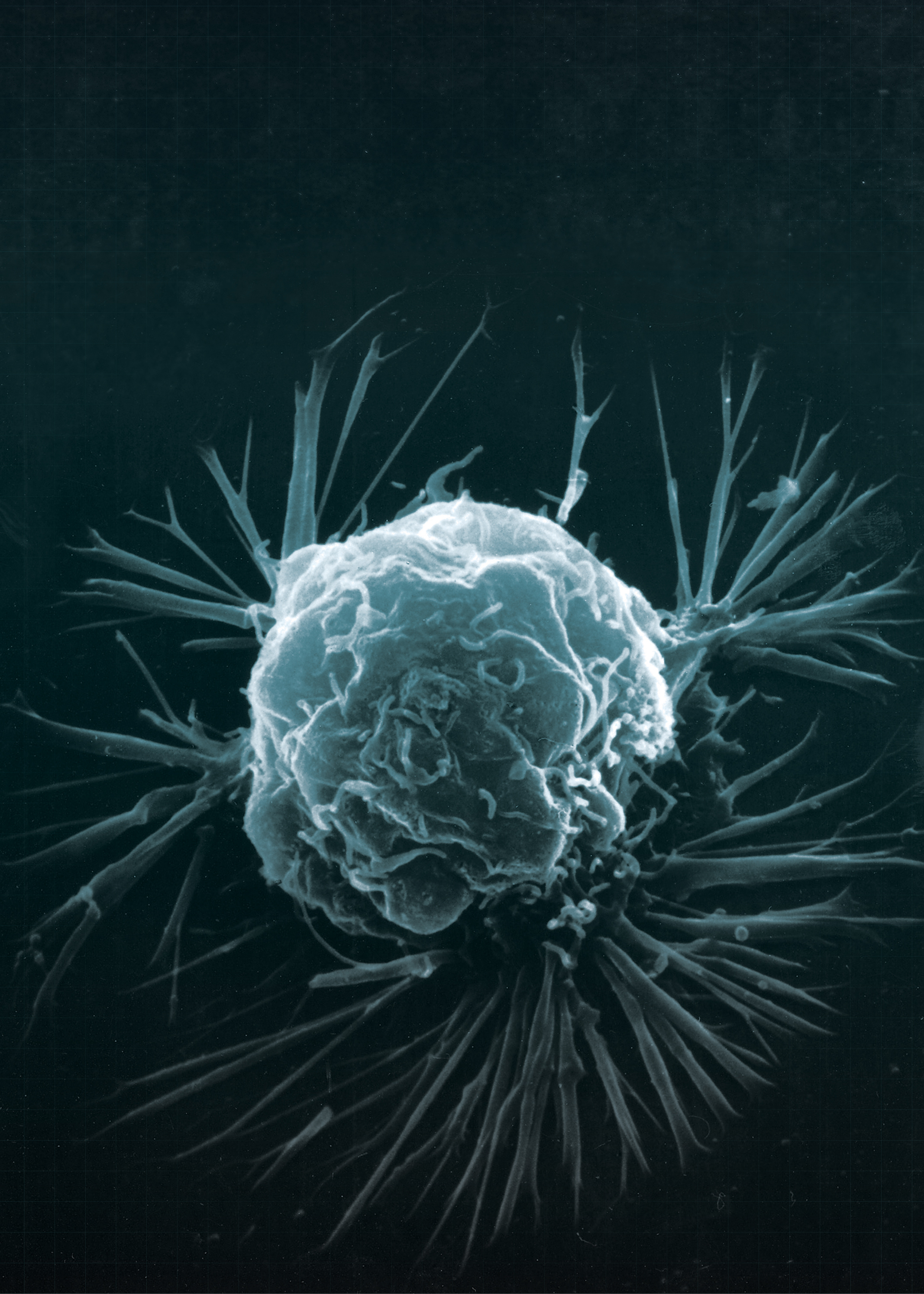 A cancer cell.